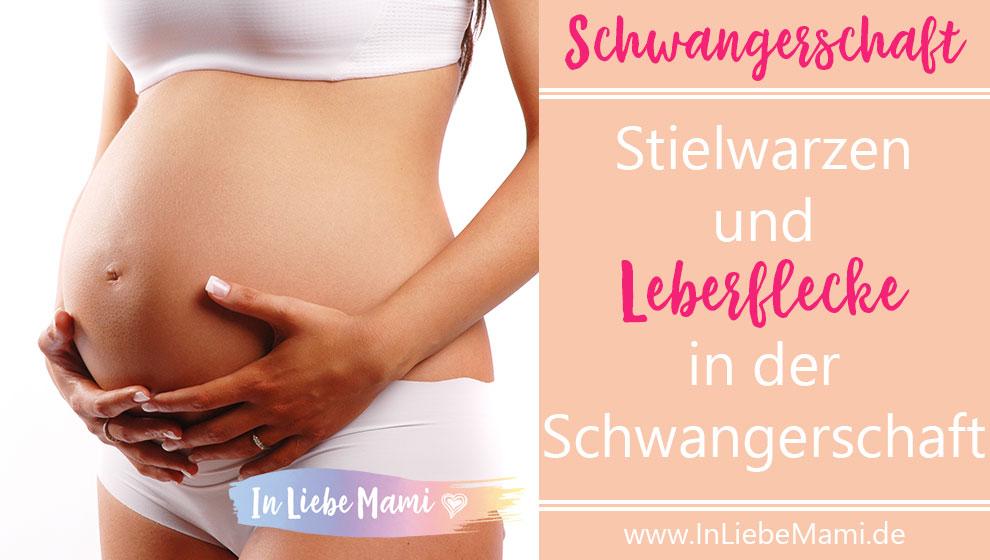 Stielwarzen Schwangerschaft